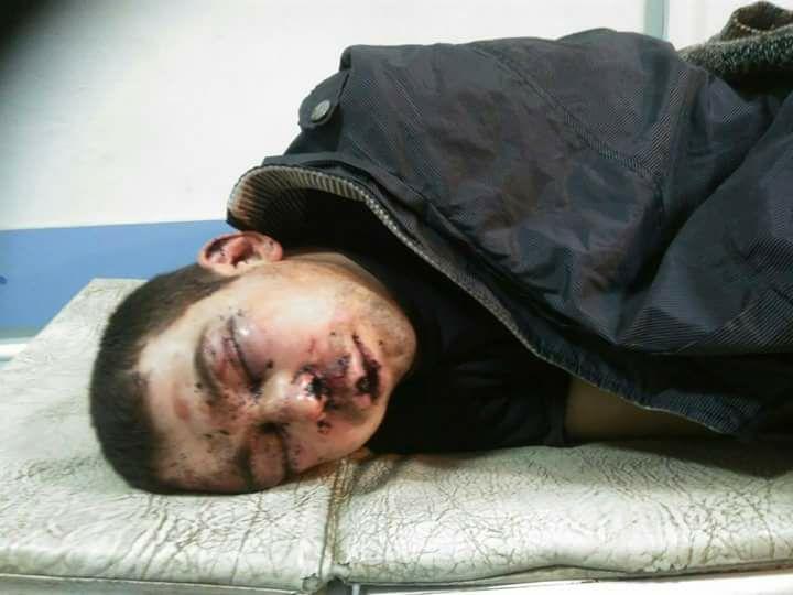 Харьковские медики спасают избитого до полусмерти коллегу