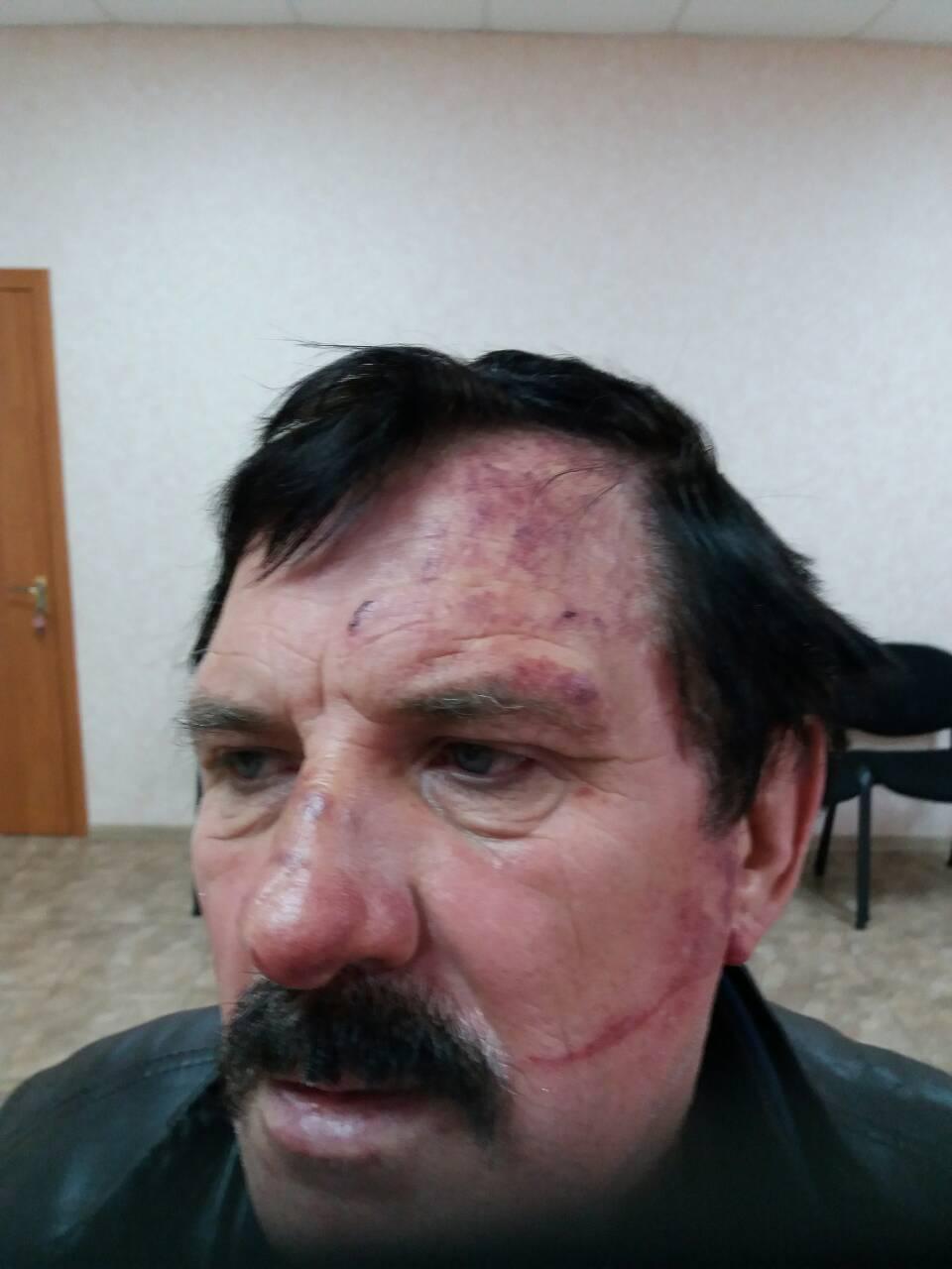 Драка в Барвенково: Против военкома открыто уголовное дело (ФОТО)