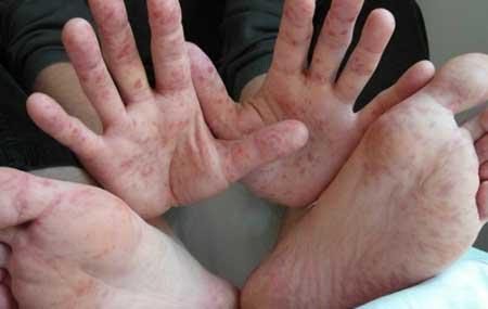 Родители бьют тревогу из-за эпидемии вируса Коксаки в харьковском детсаду