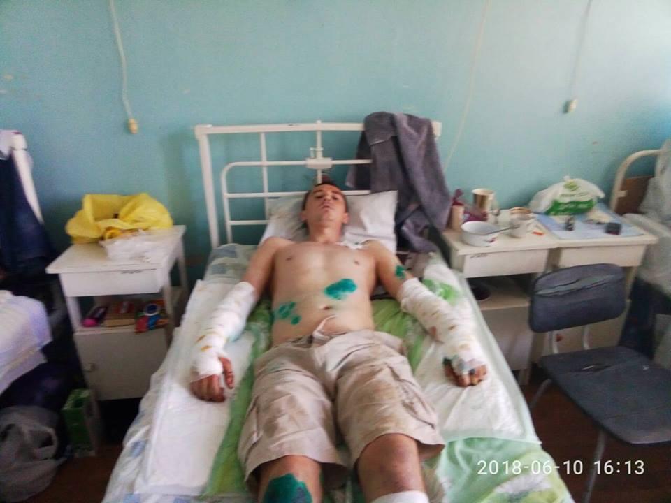 Нападение собак под Харьковом. Брат пострадавшего поделился подробностями (фото)