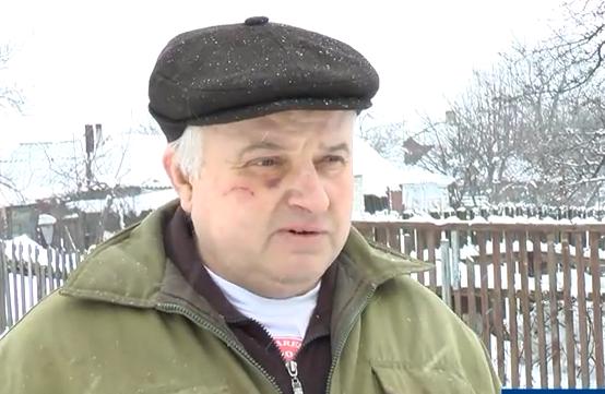 Скандал на Харьковщине. В поселковом совете мужчину избили из-за снега
