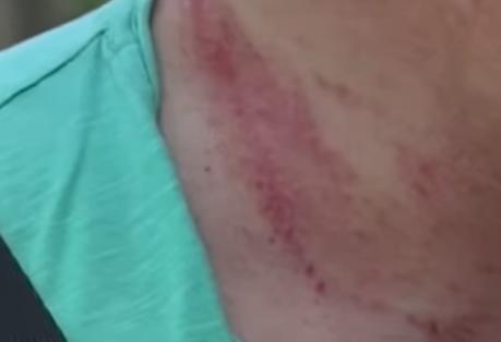 Скандал в Харькове: правоохранителей обвиняют в попытке задушить мужчину