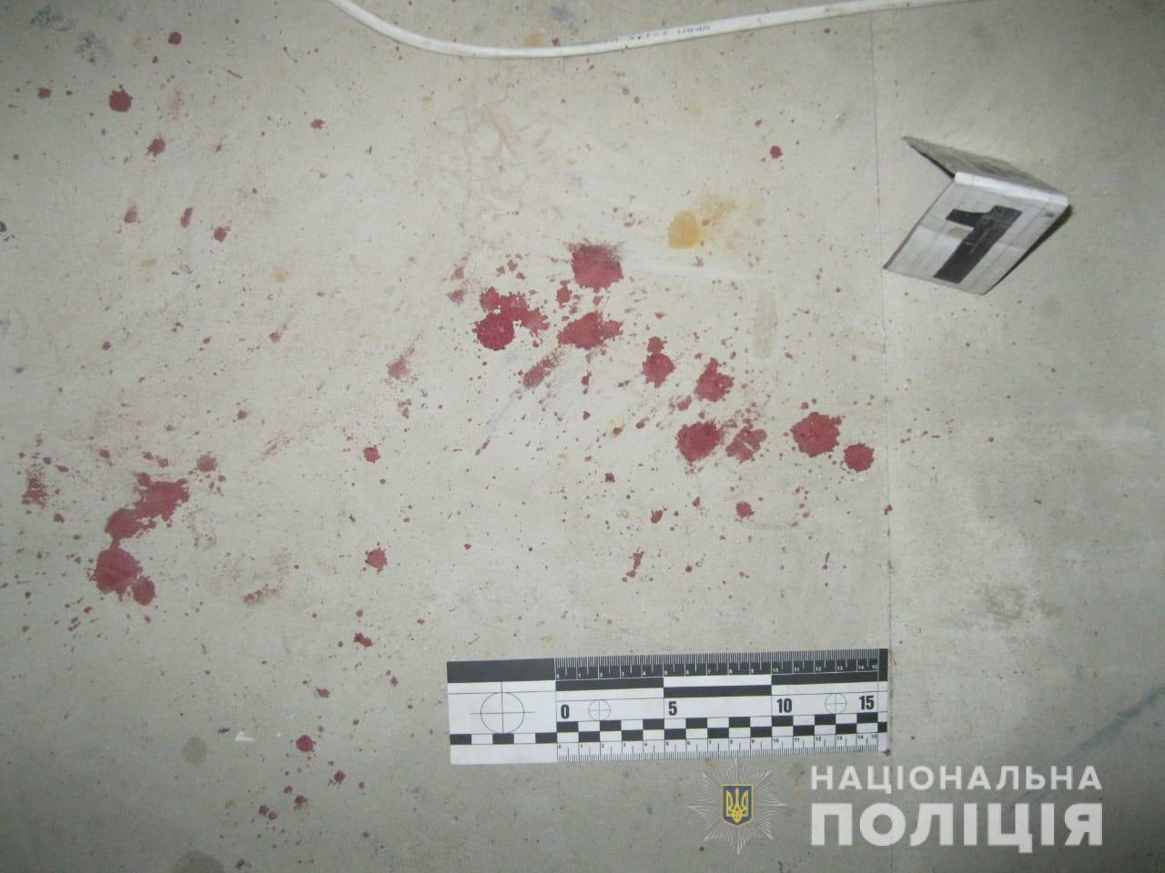 На базе отдыха под Харьковом изрезали ножом мужчину (фото)