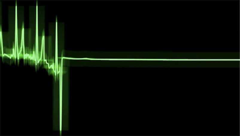 В Харькове на глазах у медиков мужчина пережил клиническую смерть